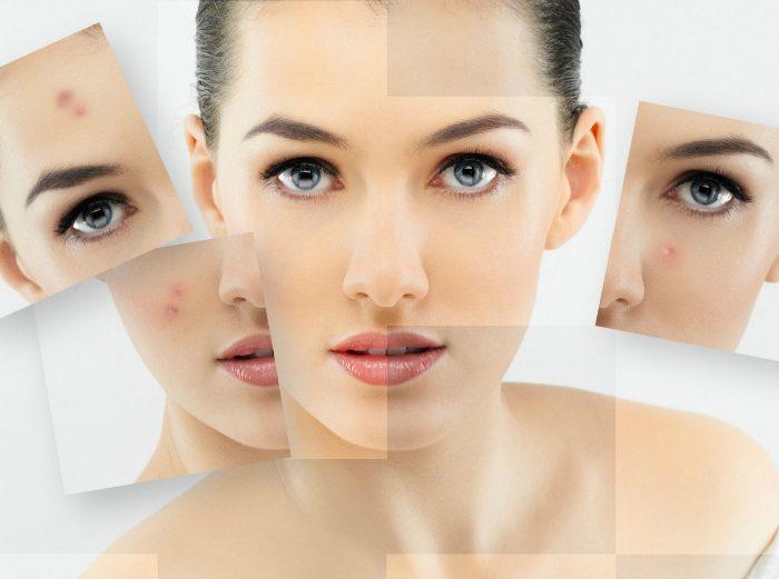 Kampf gegen Akne. Eingriffe für Frauen mit 25